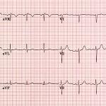 Ep. 5: Cómo leer un EKG de 12 derivaciones