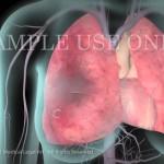 31: Embolia Pulmonar